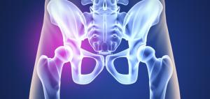 operación de prótesis de cadera
